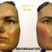 3D mask surgery